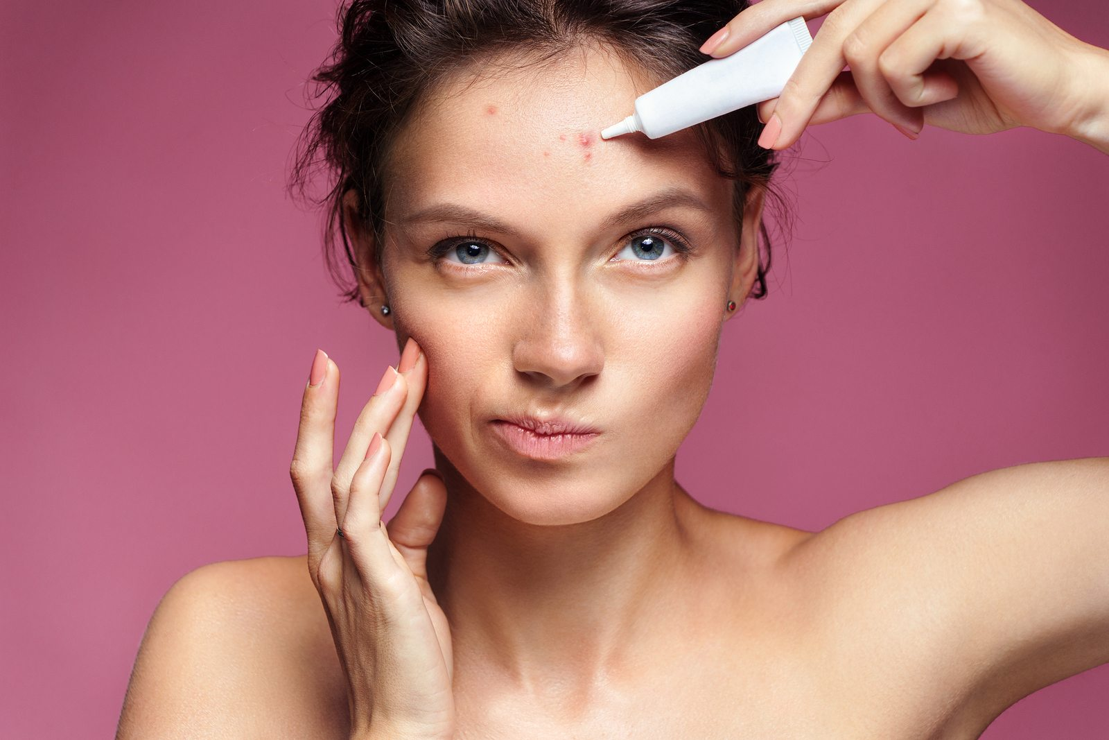 A British study has found that acne leads to an increased risk for depression
