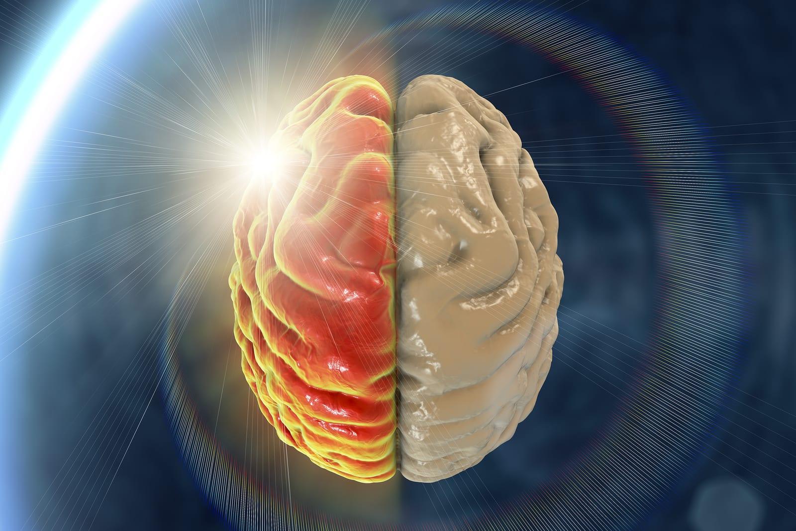 Migraine, hemicrania, medical concept showing pain in half of brain and migraine aura, 3D illustration